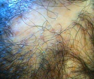 Cicatricial Alopecia: World Trichology Society